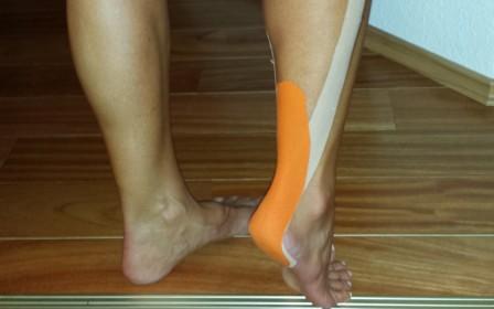 Az Achilles-ín gyulladása, szakadása