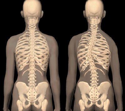 nyaki arthrosis kezelése)