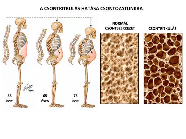 csontritkulás és gerinc artrózis kezelése)