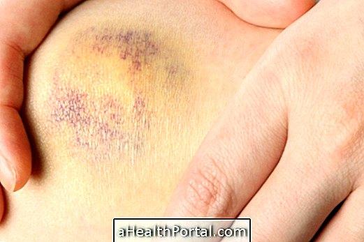kenőcsök térdízület artrózisának kezelésére