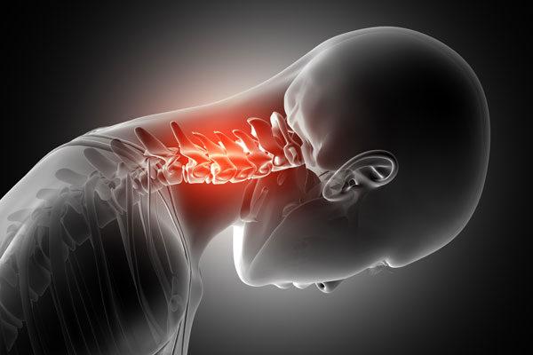 kenőcs a nyaki gerinc csontritkulásának kezelésében izület gél