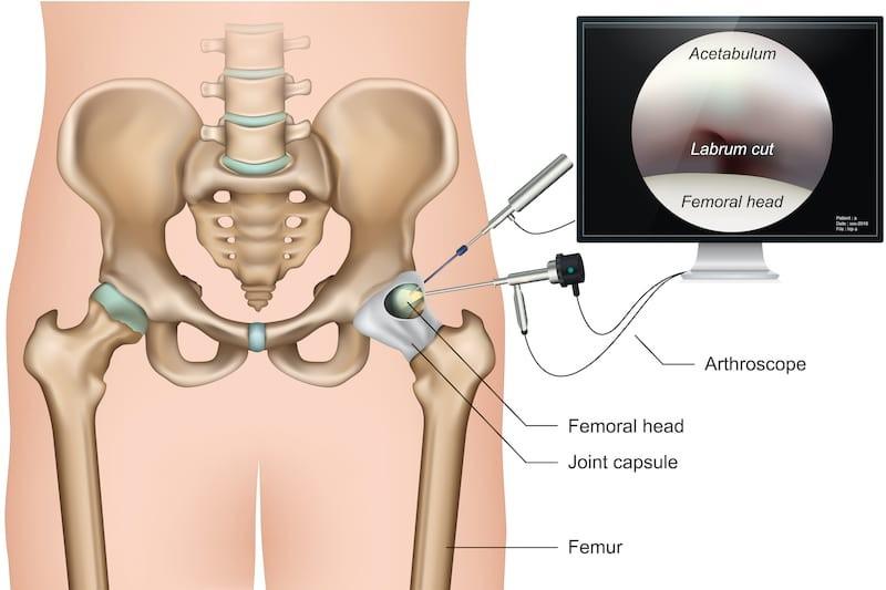 artroszkópos vállízület kezelés)