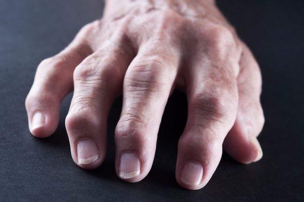 a kéz és a láb ízületeinek betegsége)