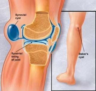 a csípőízület fájdalmának guggolása után