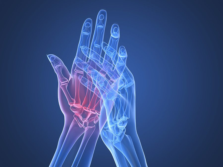 kézízületi sérülés kezelése)