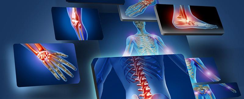 akut rheumatoid arthritis ellátási terv