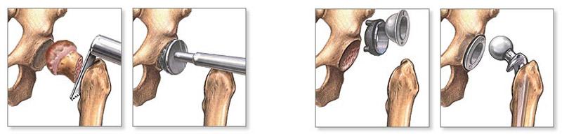 csípőízületi protézis diszlokációs kezelés
