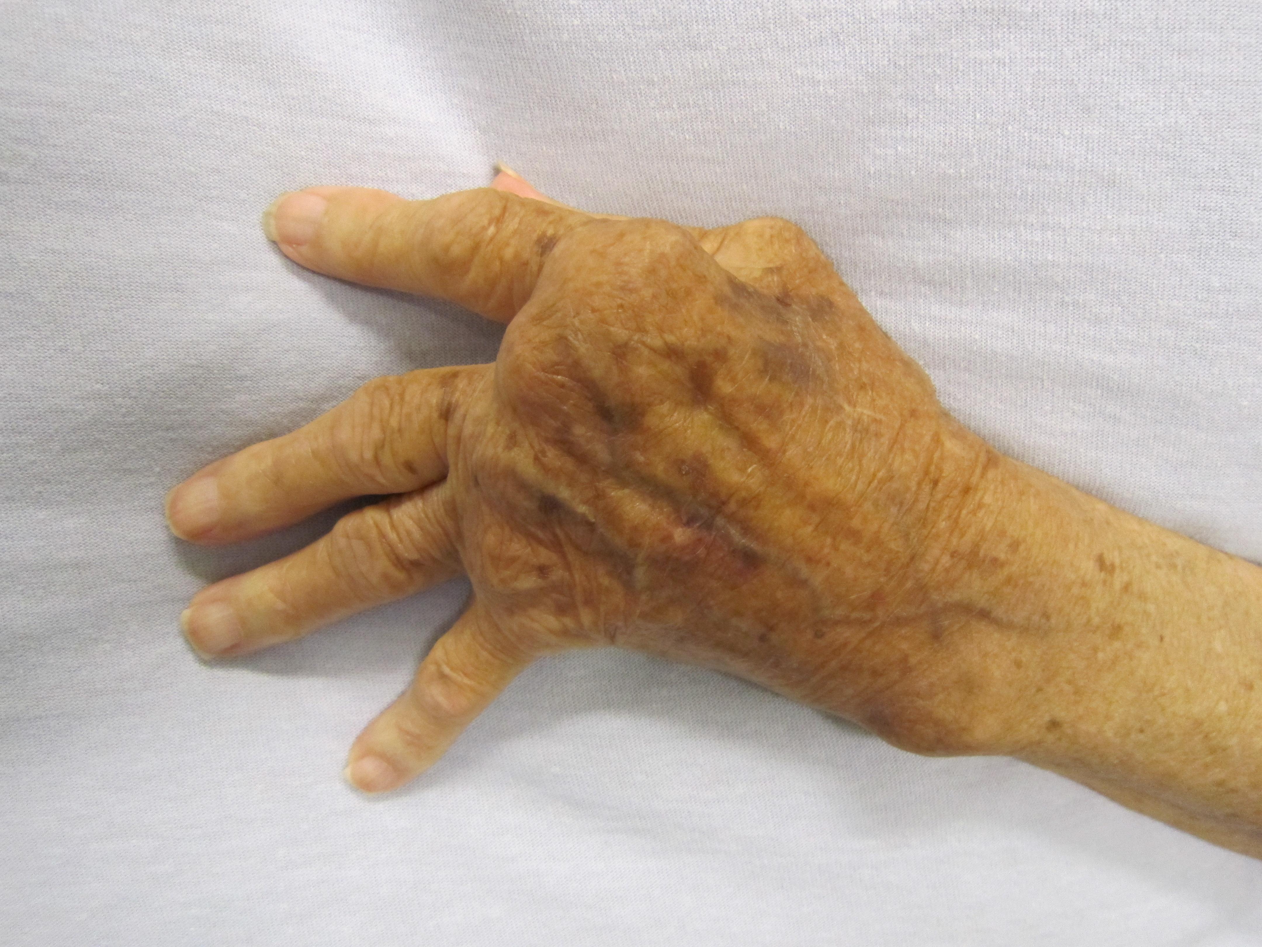 Dr. Diag - Kihült rheumatoid arthritis destruált ízületekkel, szekunder arthrosissal