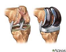 Gyakorlatok a csípő artroplasztika után: komplex terápia
