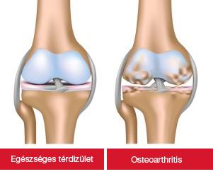 gyógyszerek artrózis artrózis kezelésére