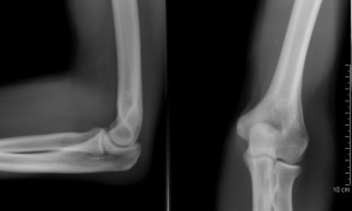 brachialis artrózis kezelési módszerei