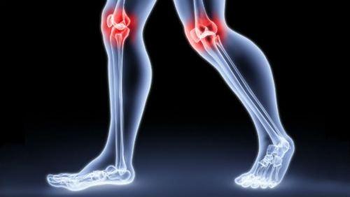 úgy, hogy a térdízületek ne váljanak össze hüvelykujj ízületi fájdalom oka