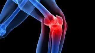 artrózis kezelése és diagnosztizálása)