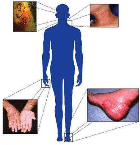 a csípőízületek fájdalmának pszichoszomatikája