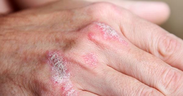 ízületi betegség vörös foltokkal