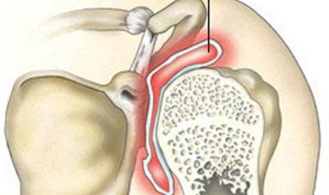 a vállízület osteochondroze mi ez