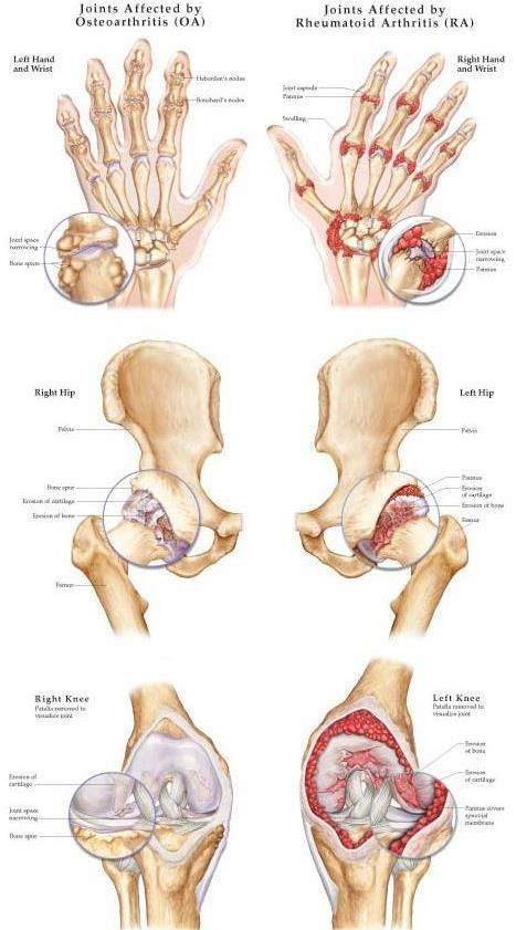 krónikus izom- és ízületi fájdalom