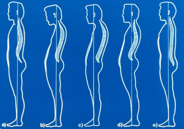 csípő görbület kezelése