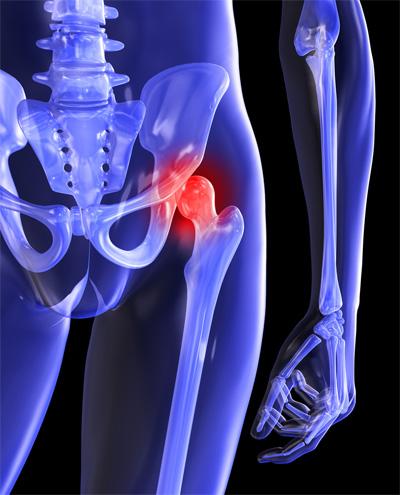 bal oldali csípő fájdalom