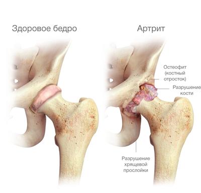 csípőízület 3. fokú csontritkulása