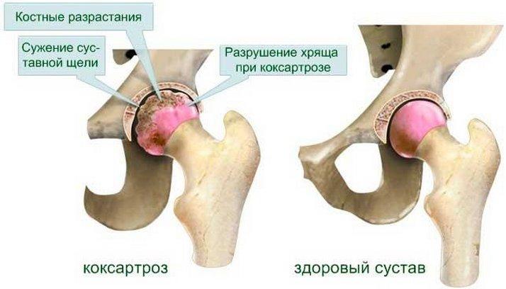 Hatékony módszerek a közös artrosz kezelésére - Sérülések