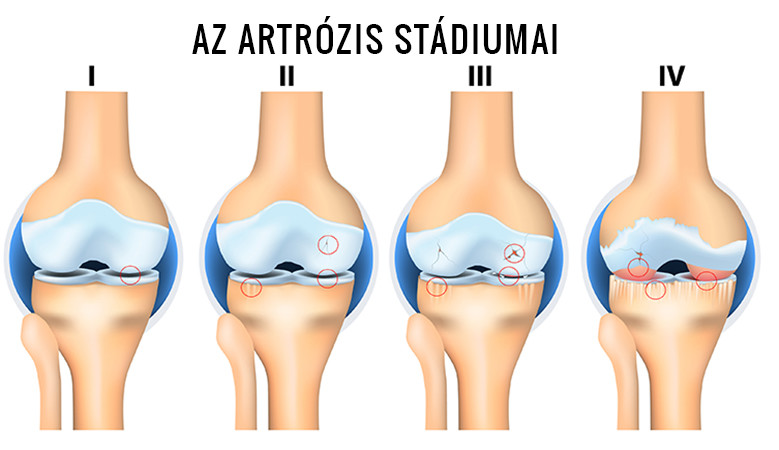 1 fokú artrózis a térd)