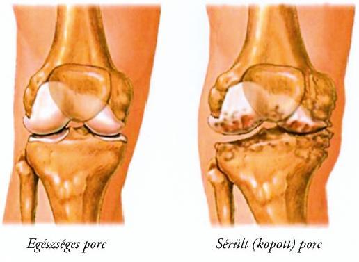 a térd artrózisának fájdalmainak sémája)