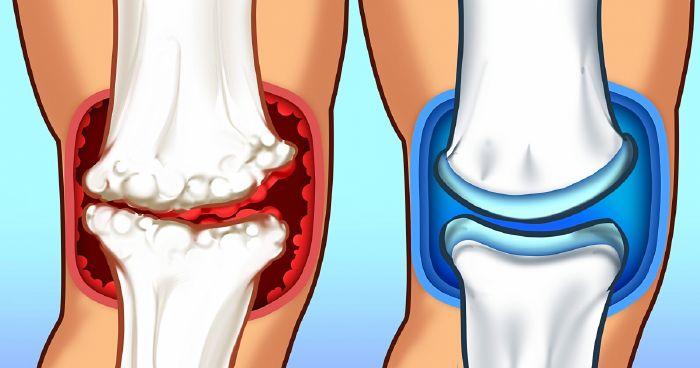 Hogyan készítsünk tömörítést a térdön arthritis vagy arthrosis miatt?