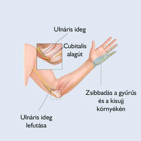 ízületi fistulák és kezelésük