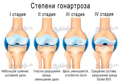 a térd gonarthrosisának kezelése 1-2 fokkal)