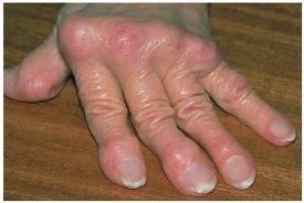 gennyes ízületi gyulladás a lábujjon