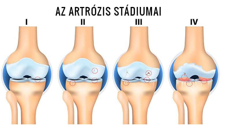 az időleges ízületi kezelés artrózisa