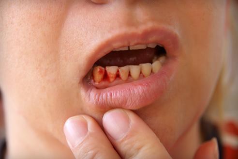 ízületi fájdalom és fogak)