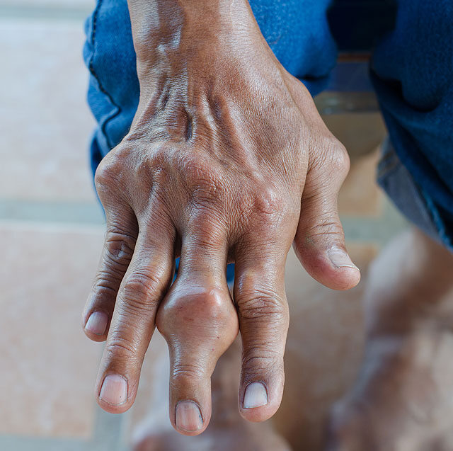 a kéz ízületei nagyon fájók