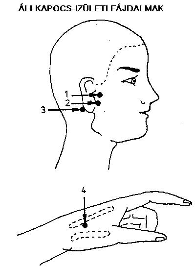 ízületi fájdalom a fül mögött