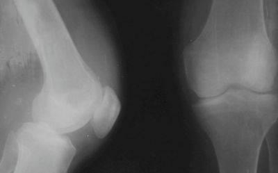 artrózis térdmozgással ízületi betegség forrása