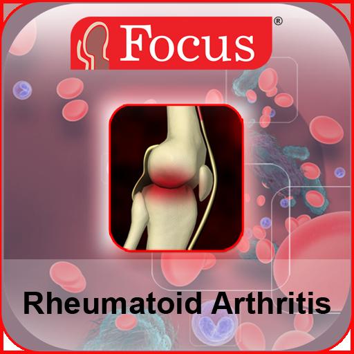 rheumatoid arthrosis, mint a kezelés)