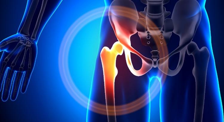 csípőízületi fájdalom esetén