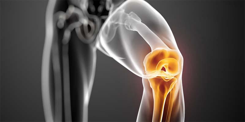 artrózis kezelése aconitiszben közös kezelés harcsa