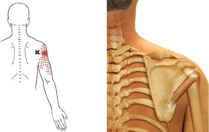 a vállízület deformáló artrózisának gyógyszeres kezelése)