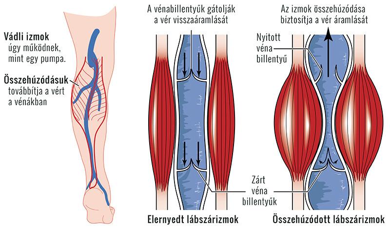 fájdalom a lábban és az ízületekben)