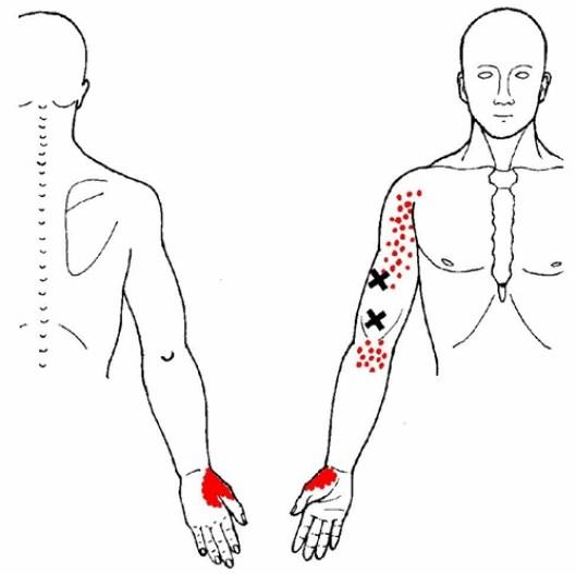 torna kezelés brachialis osteoarthritisrel