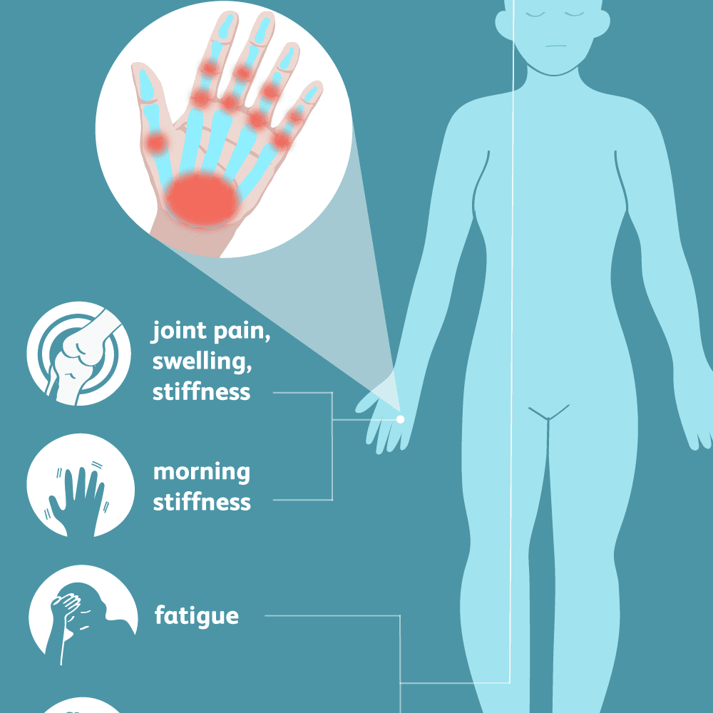 osteoarthritis symptoms and signs)