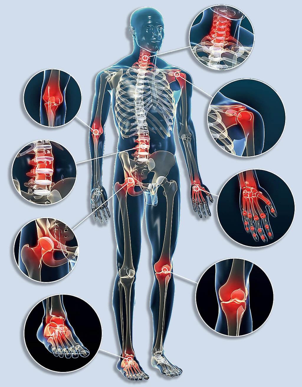 a csontok és ízületek fájdalmat okoznak