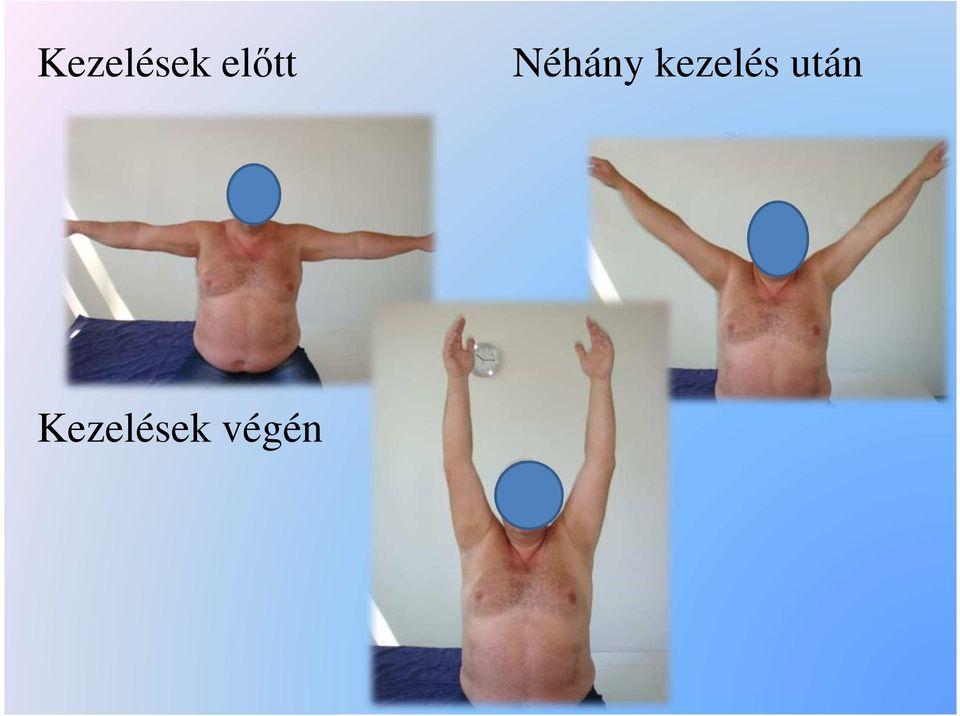 váll periarthritis kezelés áttekintése)