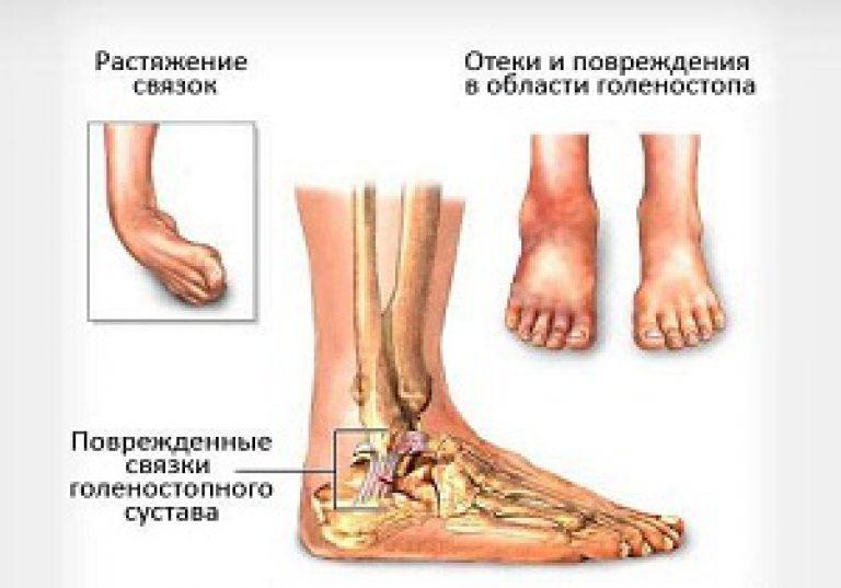 milyen kötést használnak a bokaízület sérüléseihez)