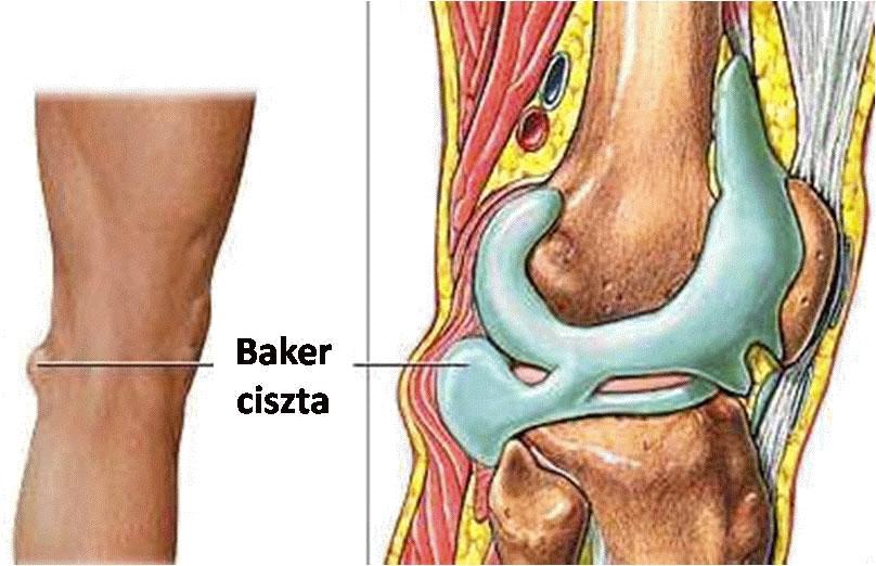 gyógyszerek a bokaízület fájdalmának kezelésére)