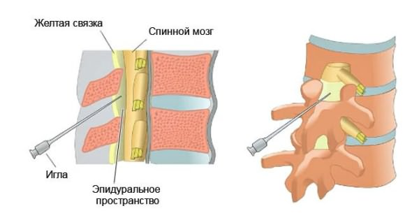 nem szteroid gyógyszerek osteochondrozishoz