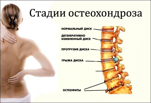 ízületi fájdalom vegetovaszkuláris dystoniával)