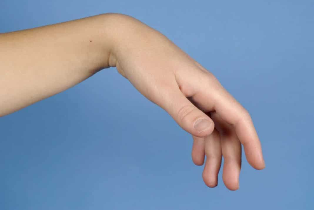 fájdalom a jobb kéz hüvelykujjának ízületeiben
